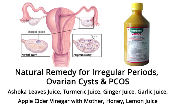 Irregular Periods Pcos Ancora Store